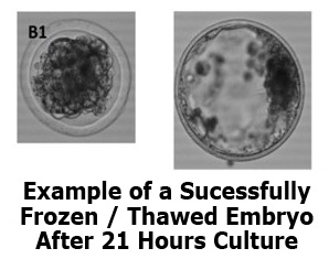 Frozen Thawed Embryos